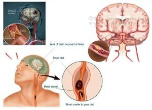 Obat Stroke Ringan Herbal